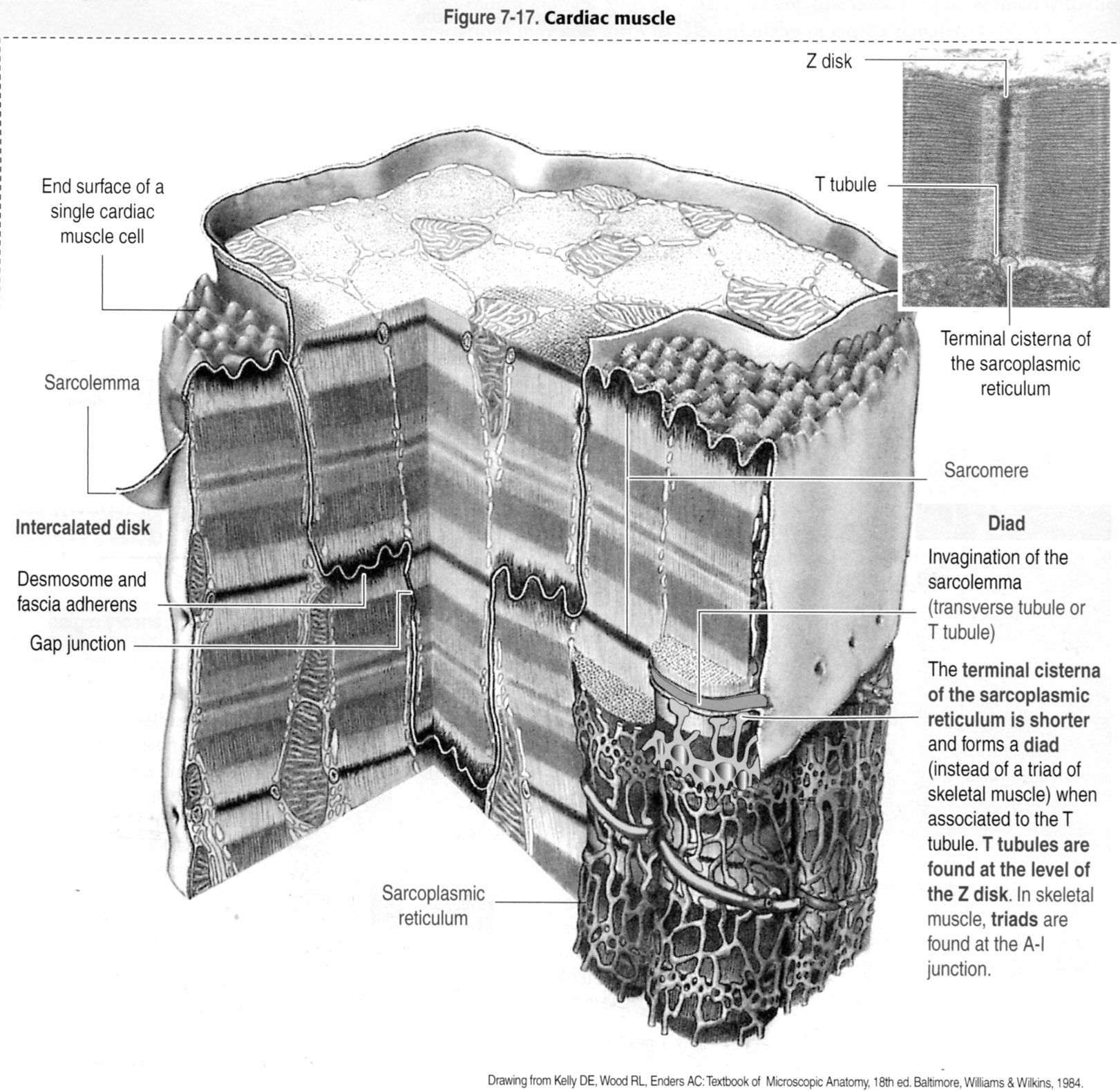 Muscle Cell Diagram Diagram of Cardiac Muscle
