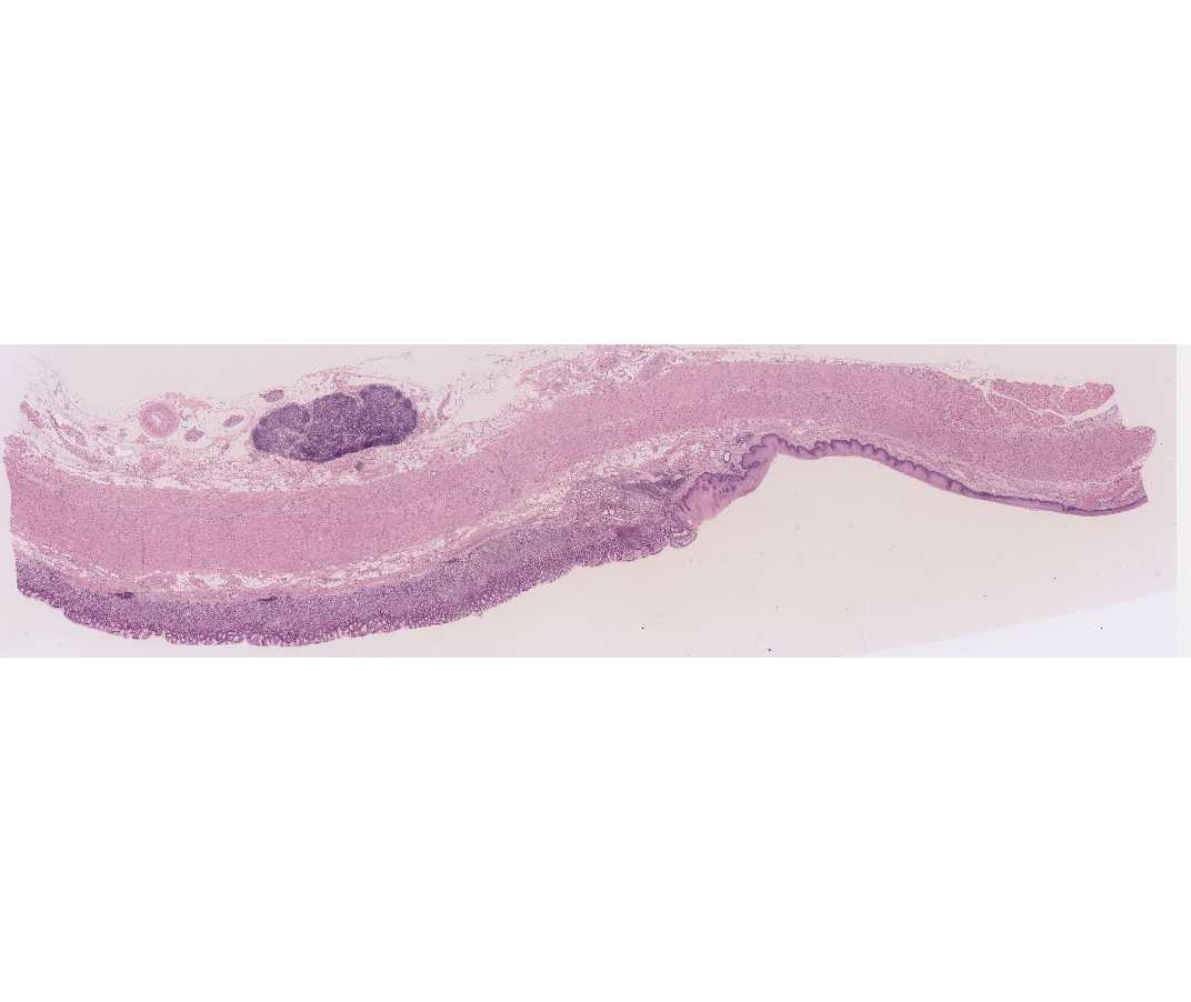 Real human esophagus - photo#14
